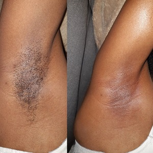 before and after sugar waxing